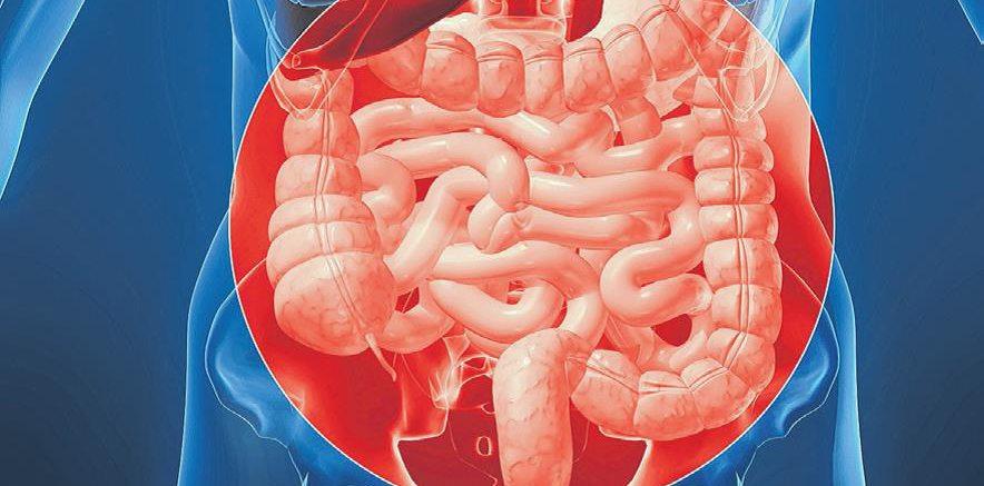 Livesmart Understanding Crohn S Disease And Ulcerative Colitis St Peter S Health Partners News
